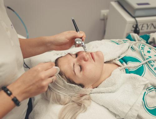 Mezoterapija lica bez igala –  čudesni tretman za osvežavanje i podmlađivanje kože
