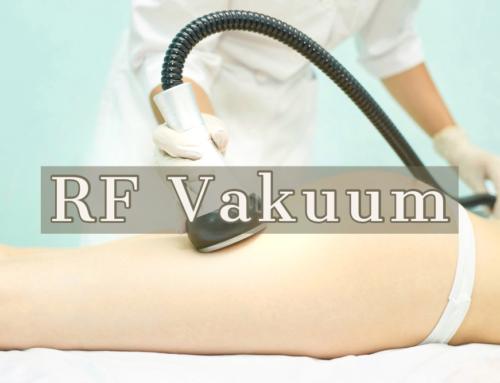 RF Vakuumom do tela iz snova